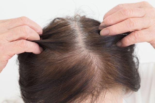 頭皮をマッサージするシニア