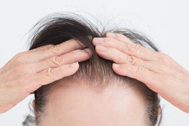 シニア女性の頭部