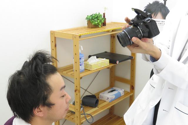 前頭部の撮影