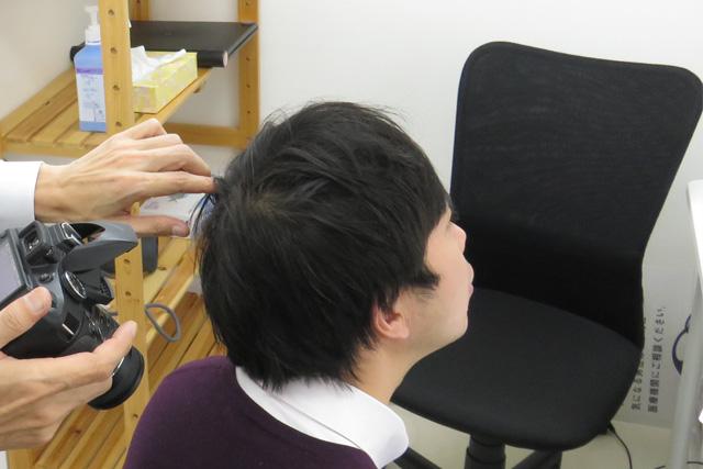 頭頂部の撮影