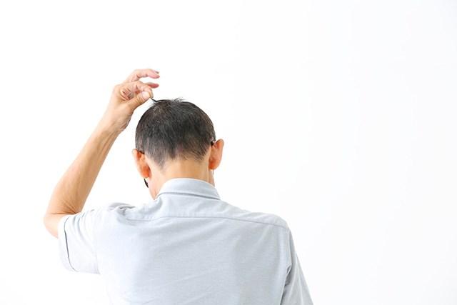 頭頂部を気にする男性の後ろ姿
