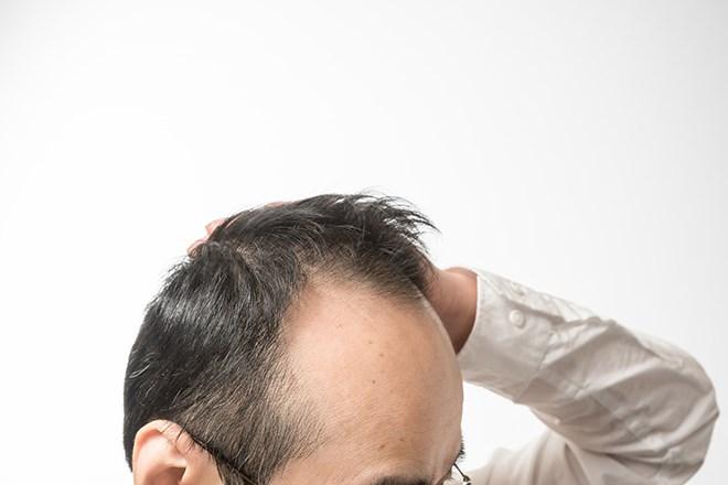 薄毛に悩む男性の頭部